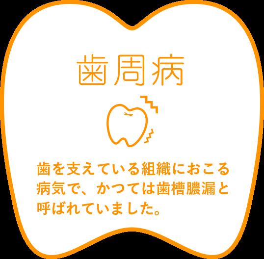 歯周病 歯を支えている組織におこる病気で、かつては歯槽膿漏と呼ばれていました。